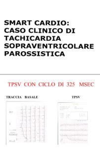 tachicardia_sopraventricolare_diagnosticata_con_smartcardio