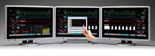 sylco sistemi di monitoraggio